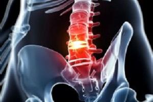 Har du ondt i ryggen eller rygproblemer?